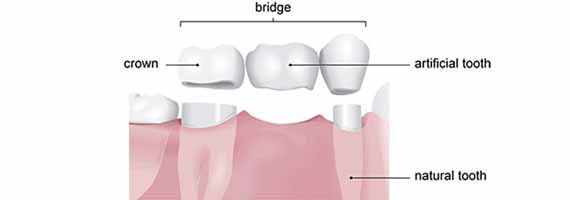 Porcelain_and_Zirconium_crownsbridges