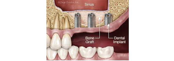 Sinus Floor Elevation With Graft : Bone graft treatment and dental sinus lift in budapest