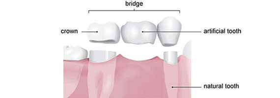 Porcelain and Zirconium crowns/bridges