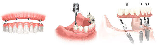 All-on-4TM Procedure (Same day teeth, Teeth in a day)